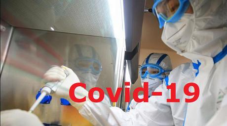 Covid1-19